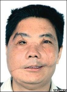 Stranger facial
