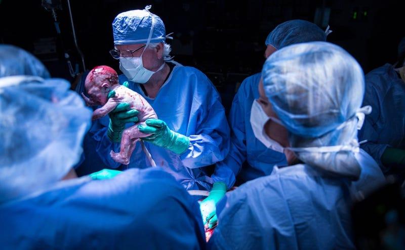 Momento del nacimiento del pequeño. Baylor University Medical Center at Dallas