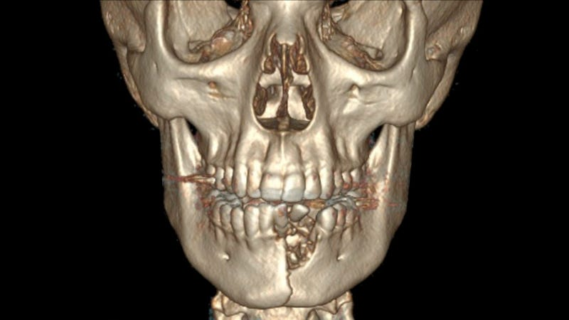 A computed tomography scan showing the lateral jaw fracture, bone loss, and missing teeth.