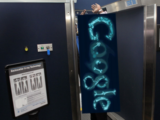 Illustration for article titled Remains of the Day: Airport X-Rays Harming You?