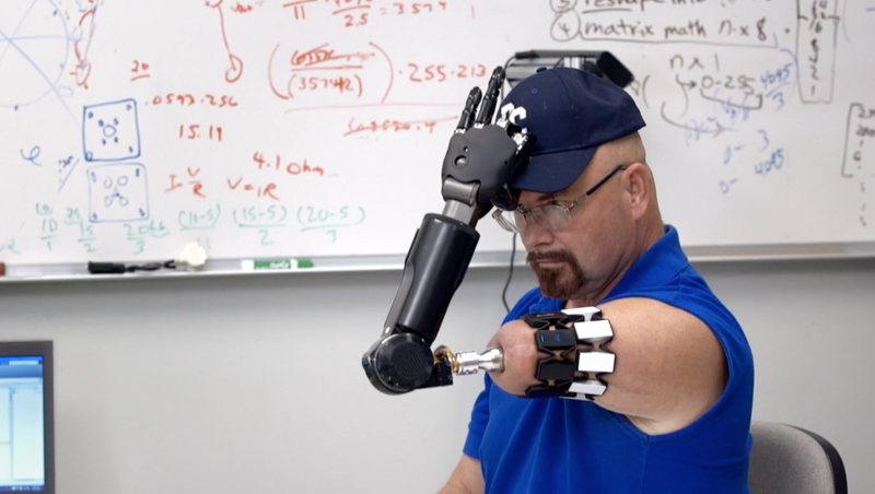 Jonny Matheny putting on a hat with a mind-controlled arm developed by DARPA. Image: Freethink
