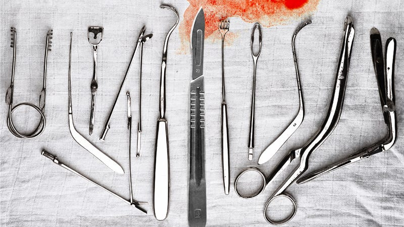 Illustration for article titled Creepy 'Love Surgery' Performed on New Moms' Unwitting Vaginas