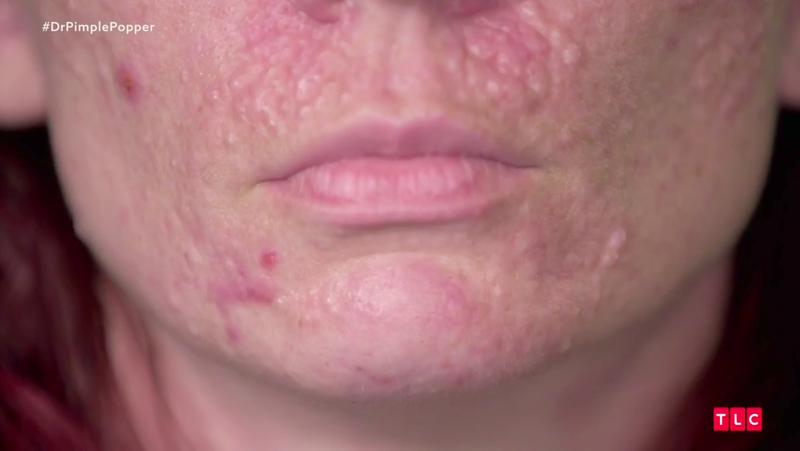 Dr Pimple Popper Season 2 Episode 4 Recap
