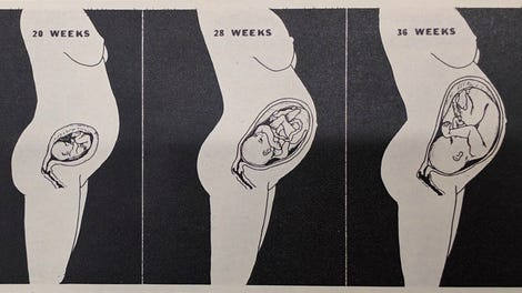 Pregnancy's Deadly Itch