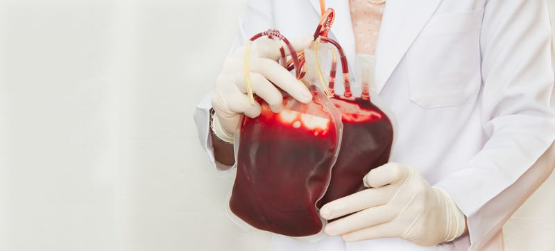 Illustration for article titled Blood Transfusions Are One of the Most Overused Procedures in Medicine