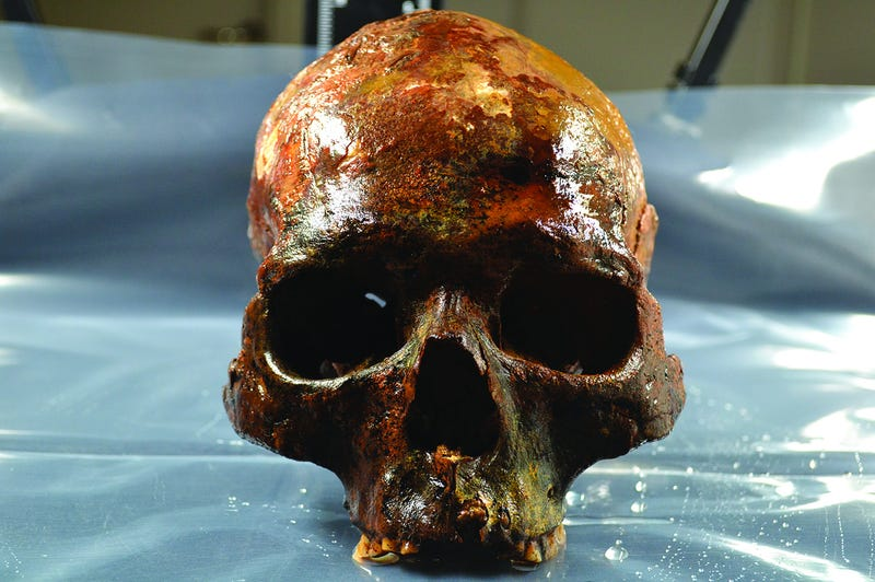A skull found at the Kanaljorden site in Sweden. (Image: S. Gummesson et al., 2018)