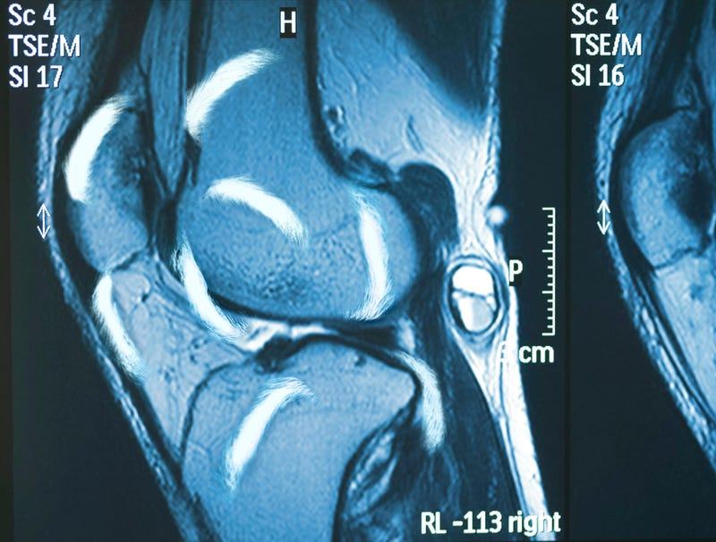 Illustration for article titled MRI Reveals Anthony Davis' Knee Filled With More Eyebrows