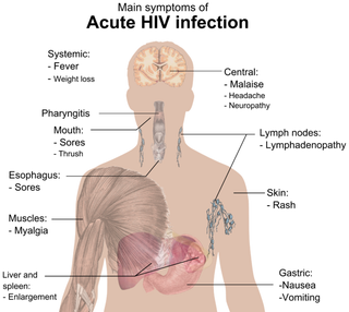 Illustration for article titled How Hiv Causes Aids Pdf Free