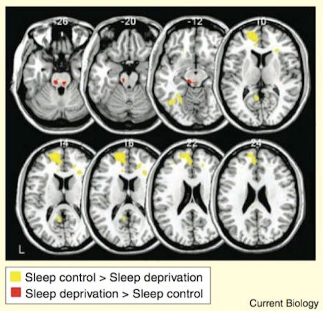 How Much Sleep Do You Really Need to Work Productively?