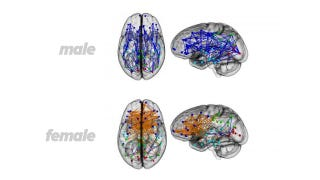 Illustration for article titled New study: Striking brain differences explain some gender stereotypes
