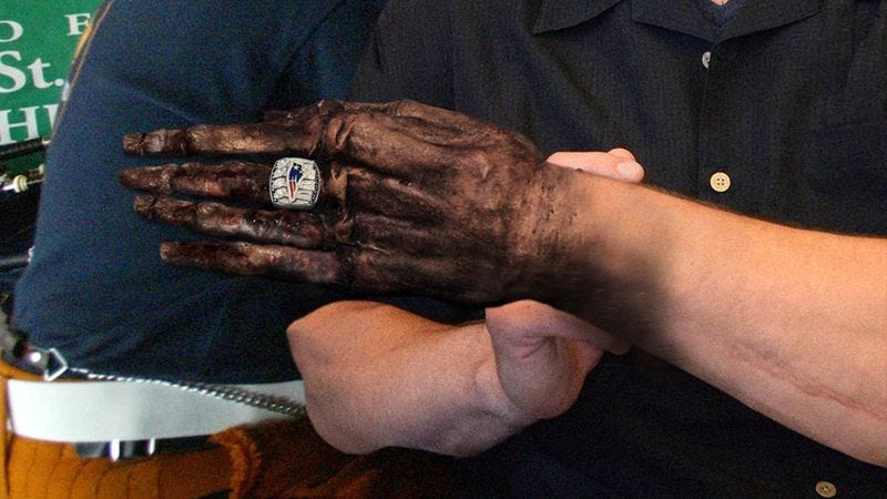 Illustration for article titled Patriots Horrified After New Super Bowl Rings Cause Fingers To Shrivel Up, Turn Black