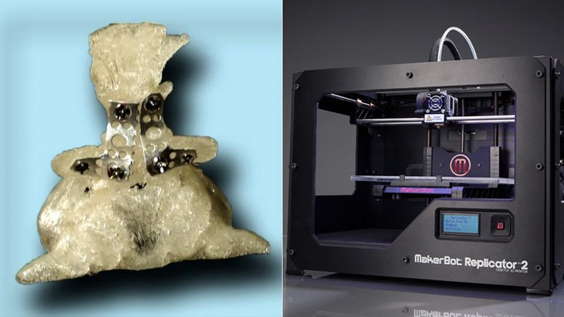Illustration for article titled 3D Printing Gives a Dog a Bone (For Invasive Surgery)