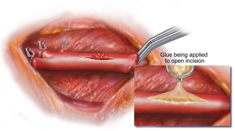 Illustration for article titled This New Worm-Inspired Surgical Glue Can Mend Wet, Squishy Heart Tissue