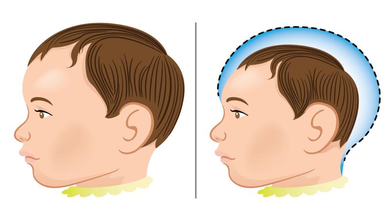 Niño normal y niño microcéfalo. Imagen: Luciano Cosmo / Shutterstock