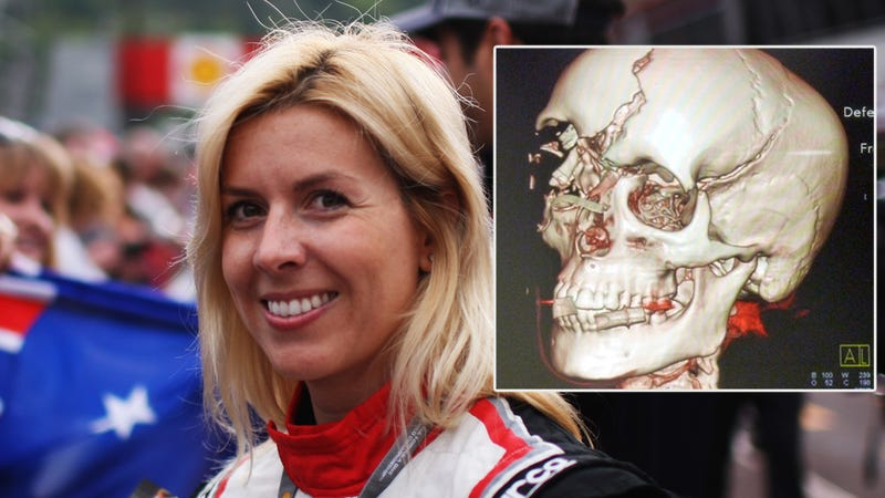 Illustration for article titled This Woman Survived One Of Modern Racing's Most Brutal Accidents