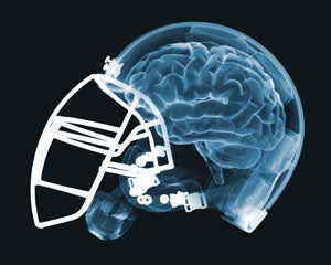 """Illustration for article titled NFL Dementia Study Is Not Exactly """"Scientific"""""""