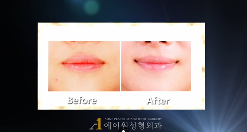 South Korean Plastic Surgeons Say Smile Surgery Is Totally Necessary