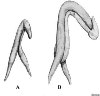 clitoris photos large Systems