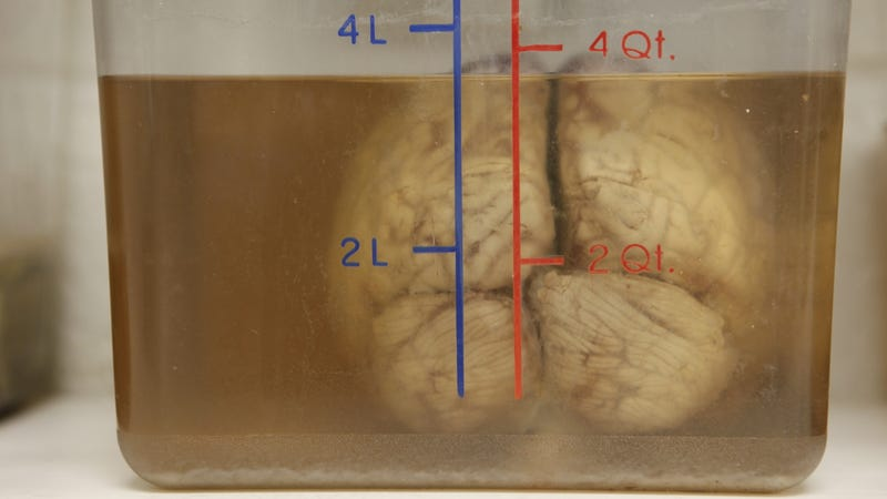 A human brain at Georgetown University Medical Center in Washington