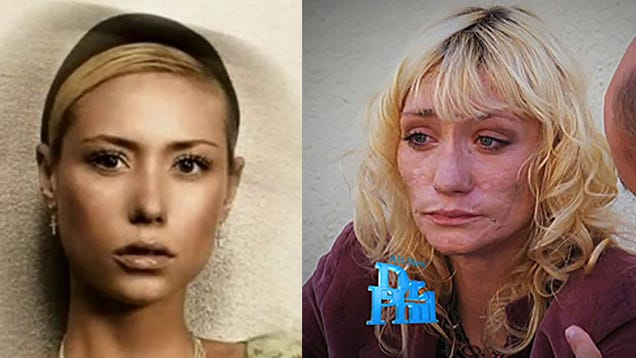 Meth's devastating effects: Before and after - CBS News
