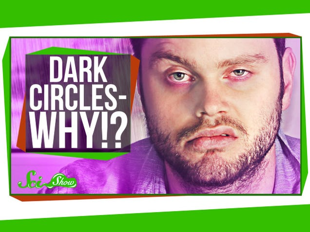 Why You Get Dark Circles Under Your Eyes