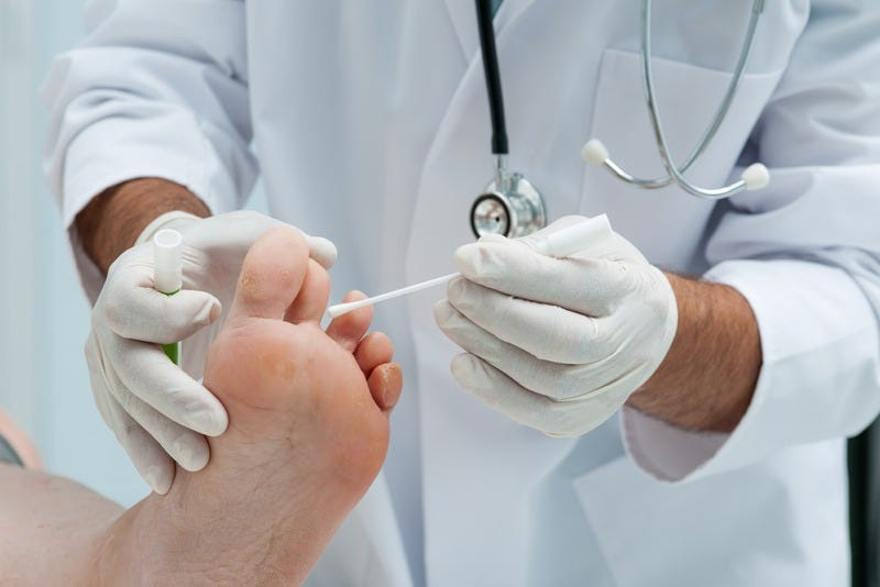 Cold Plasma Could Be Used to Freeze Out Toenail Fungus