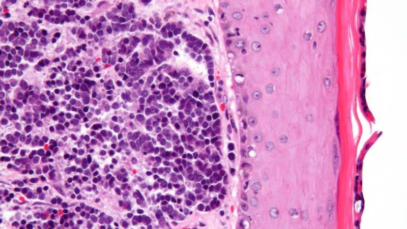 Merkel cell carcinoma (Image: Nephron/Wikimedia Commons)