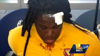 Diamond Neals, one of the girls left bloody after a reported fight with a Baltimore school police officerWBAL-TV screenshot