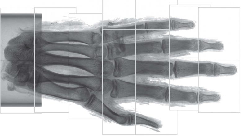 A phase-contrast scan of the mummy's hand. Nine individual scans were stitched together to create this composite image.