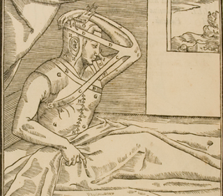 Illustration for article titled Nose jobs have been around since the 16th century