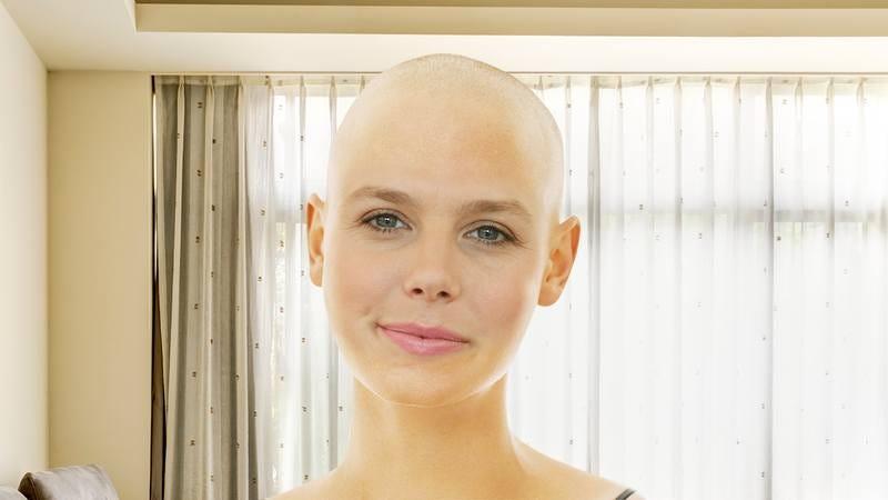 A bald woman.