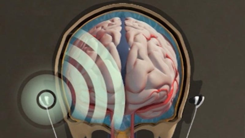 These Earbuds Ping Your Head to Measure Swelling on Your Brain