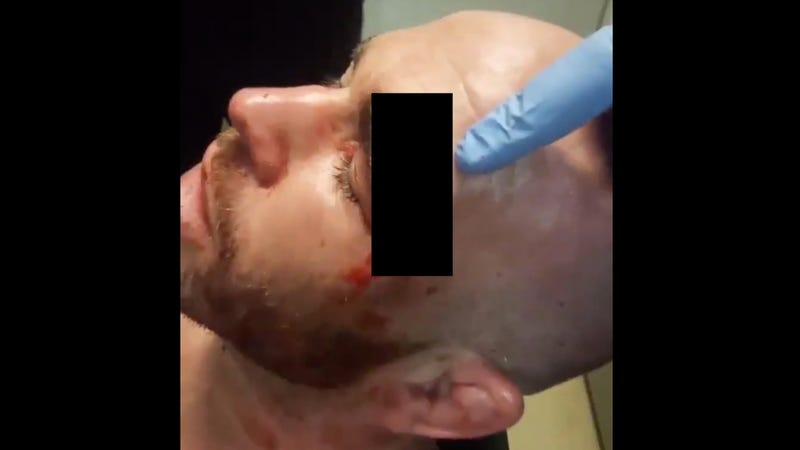 Illustration for article titled MMA Fighter Takes Knee To The Face, Suffers Extremely Gnarly Head Wound