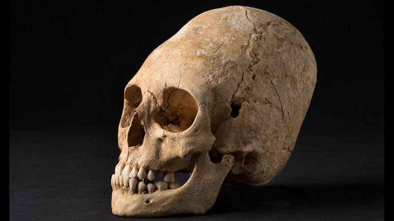 Illustration for article titled French Archaeologists Discover Beautifully Preserved Deformed Skull