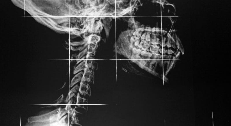 Implantan por primera vez en un paciente una vértebra impresa en 3D