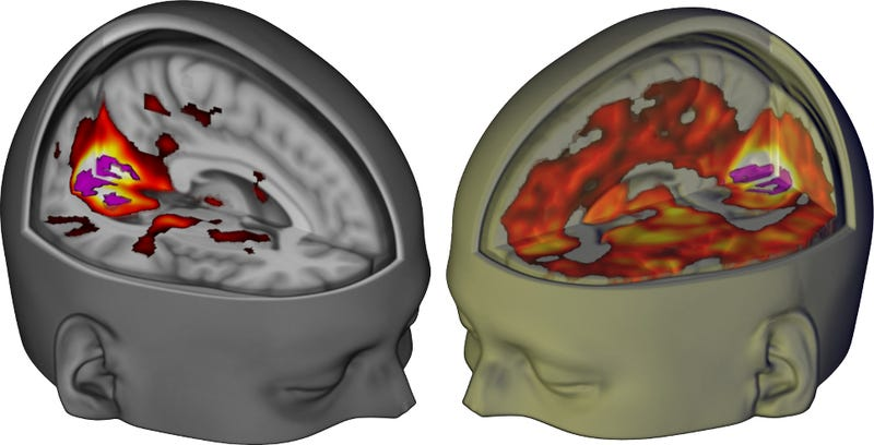 Image showing the difference between primary visual cortex communication under placebo (left) and LSD (right). Image: R. Carhart-Harris/Imperial College London