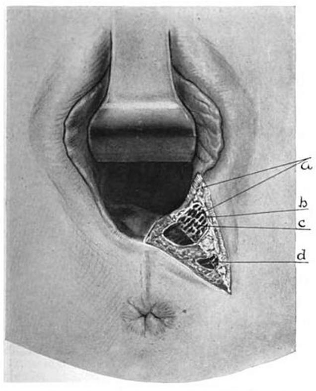 Anal sex fækal inkontinens