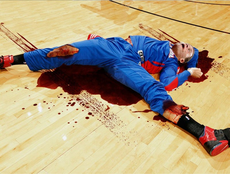Illustration for article titled Car Blake Griffin Dunked Over Exacts Bloody Revenge