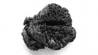 This 4,000-Year-Old Brain Was Burned, Boiled, Shaken, and Is Still Intact