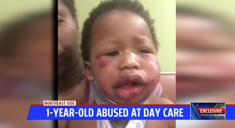 Illustration for article titled Indiana Day Care Shut Down After Brutal Attack on 1-Year-Old