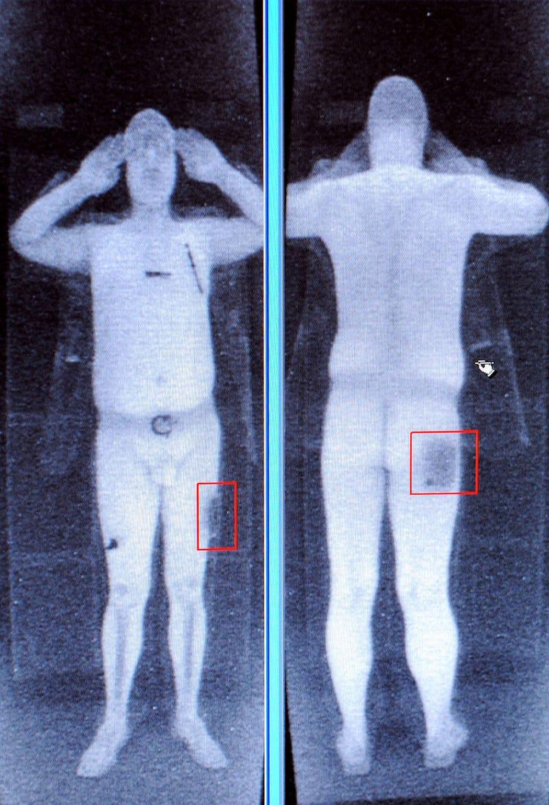Заговорил, голый сканер тела отдохнул Москве