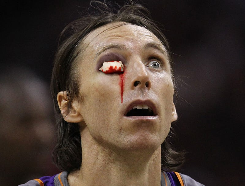 Illustration for article titled Injured Steve Nash Finishes Game With Cotton Stuffed In Eye Socket