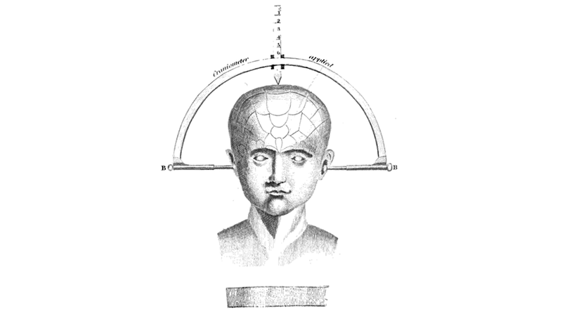 Illustration for article titled After 120 Years, Doctors Develop New Brain Surgery Technique