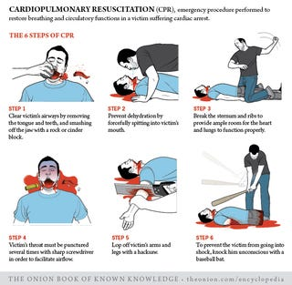 Illustration for article titled Cardiopulmonary Resuscitation