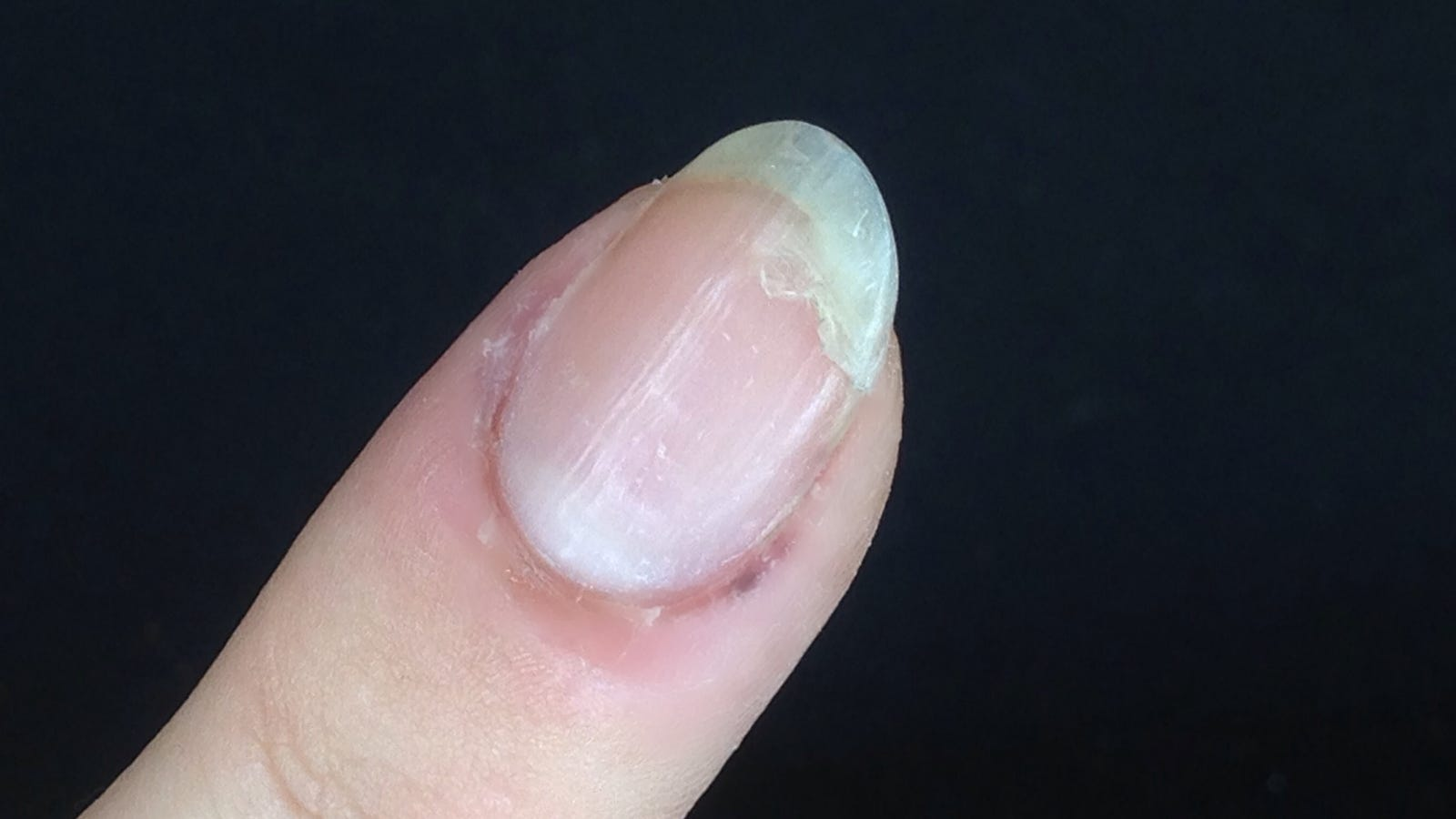 How to Fix a Torn Nail