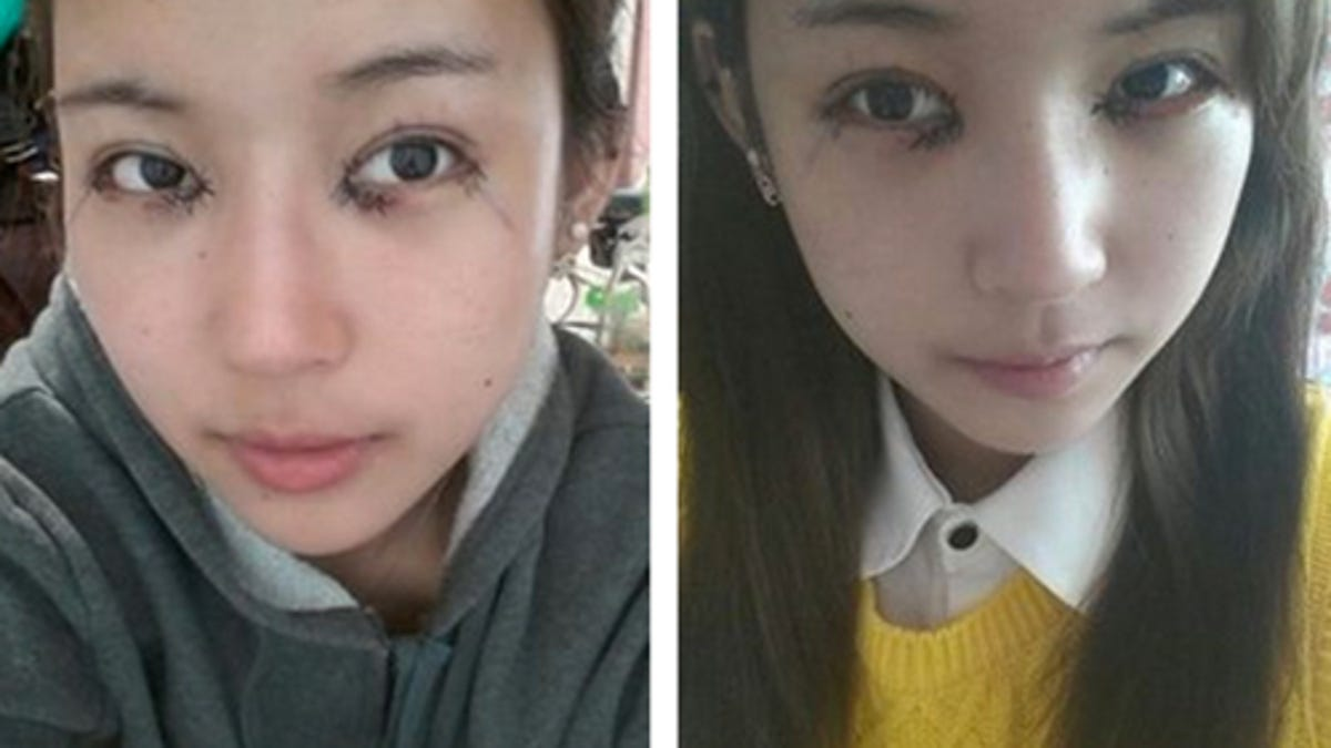 Watch Korean Girls' Obsession with Plastic Eyelid Surgery video