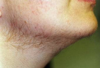 Facial hair women thyroid