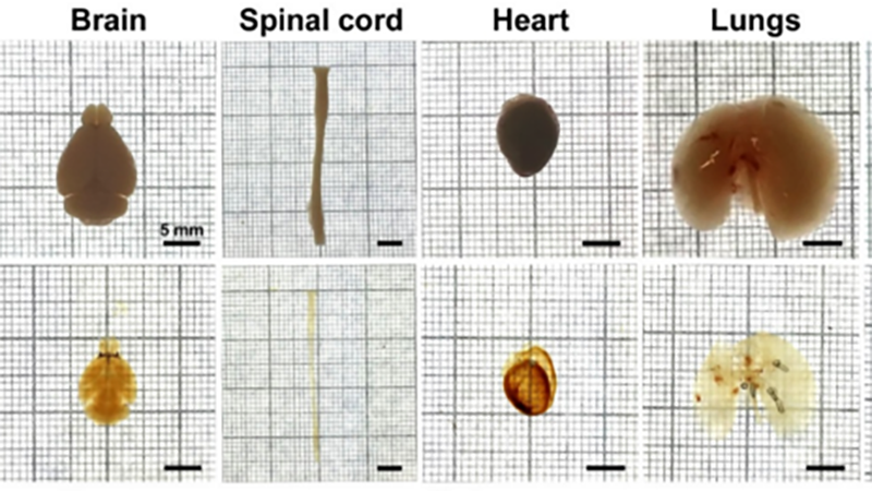 Images: Nature Mouse organs uncleared (top) and cleared (bottom)