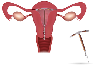 Illustration for article titled Why Are Some Men Pulling Out Women's IUDs?