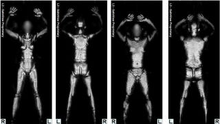 Illustration for article titled The TSA Has Finally Removed All of Its Naked Full-Body Scanners